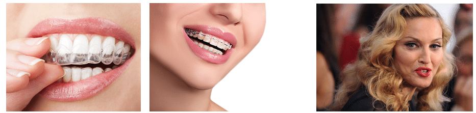 רווח בשיניים