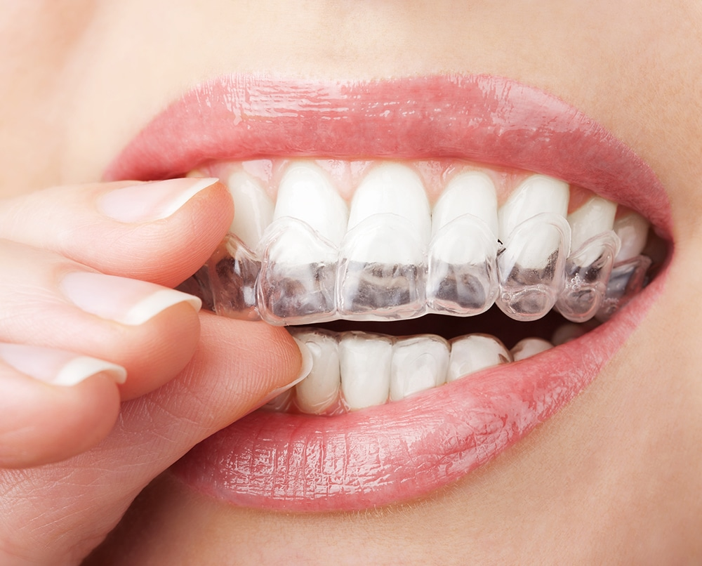 שאלות בנושא יישור שיניים בשיטת אינויזליין