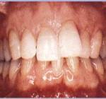 """יישור שיניים עם גשר - ד""""ר עיני"""
