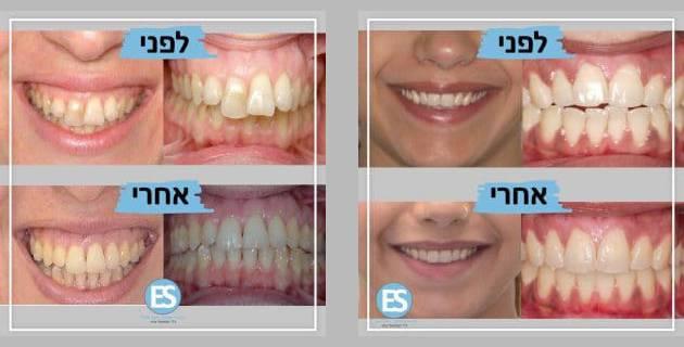 לפני ואחרי - אינויזליין