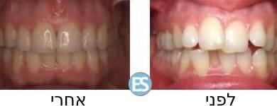 אינויזליין לפני ואחרי