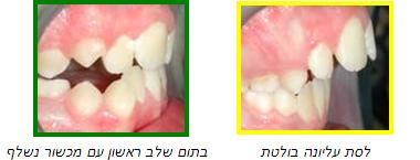 יישור שיניים מוקדם