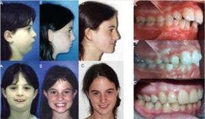 מנשך צידי של מטופלת המציגה תבנית גדילה לקויה של שלד הפנים