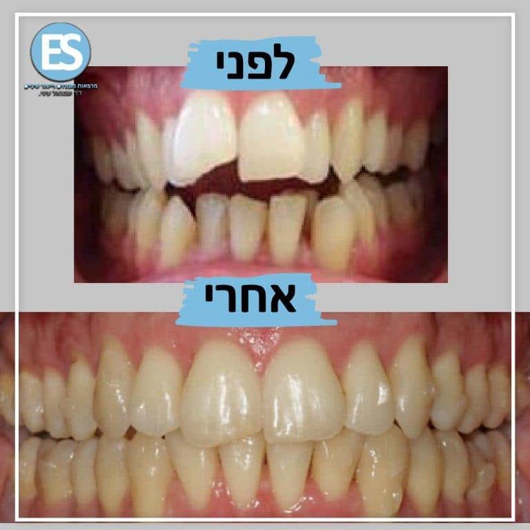 יישור שיניים ללא גשר למבוגרים לפני ואחרי