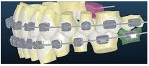 יישור שיניים מתקדם בשיטה החדשה Insigina