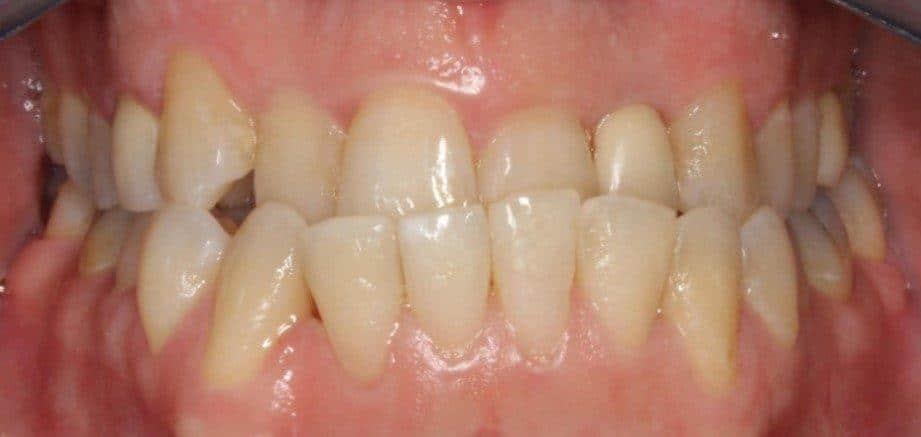 יישור שיניים למבוגרים - לפני