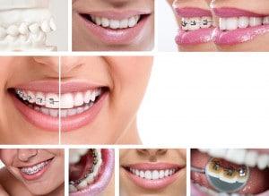 שיטות יישור שיניים