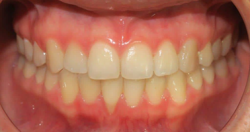 אחרי יישור שיניים למבוגרים