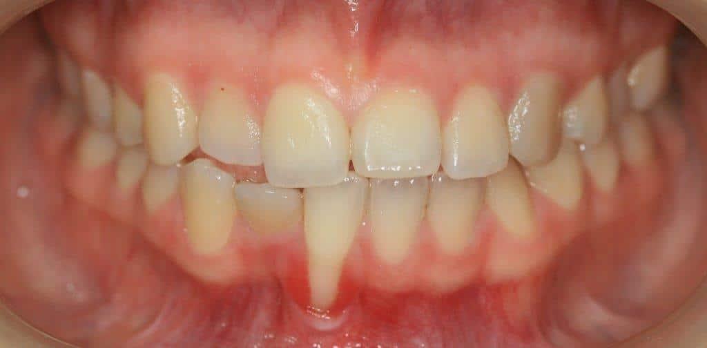 לפני - יישור שיניים למבוגרים
