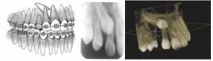 צילום שיניים כלואות