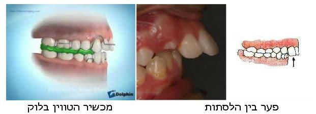 יישור שיניים - פער בין הלסתות