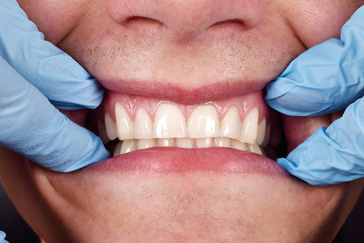 טיפול בחניכיים בולטות - יישור שיניים