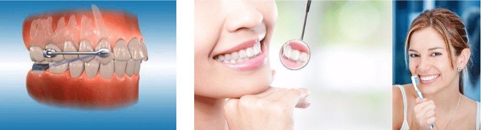 טיפול בזמן יישור שיניים