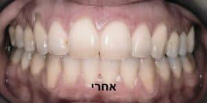 יישור שיניים שקוף אחרי