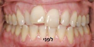 יישור שיניים שקוף לפני