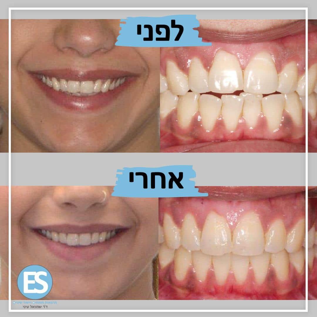 שלוש עצות ליישור שיניים