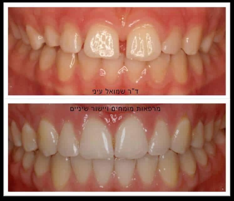 לפני ואחרי יישור שיניים
