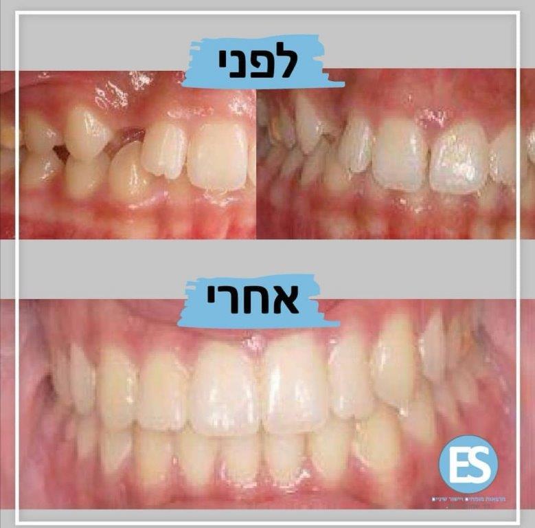 יישור שיניים -לפני אחרי