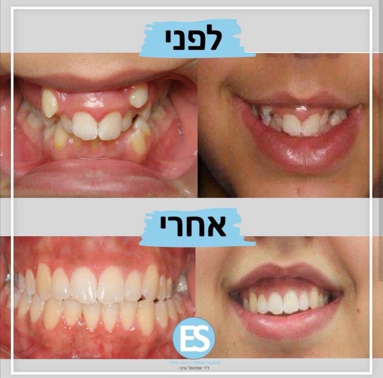 לפני ואחרי - יישור שיניים
