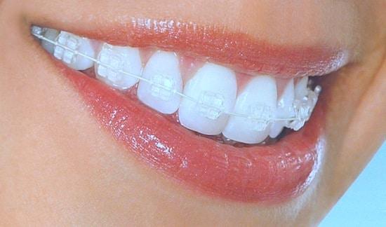 עשרת הדברות לטיפול מוצלח ביישור שיניים באמצעות קשתיות שקופות