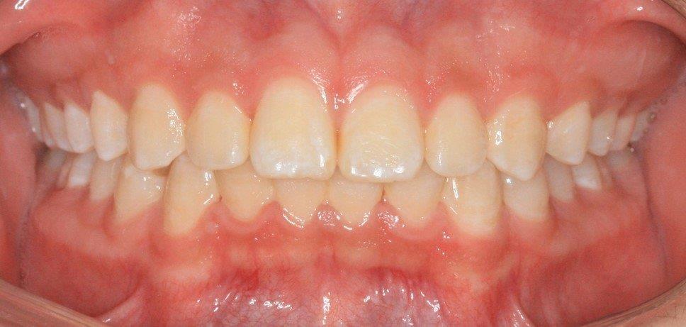 אחרי - יישור שיניים לילדים