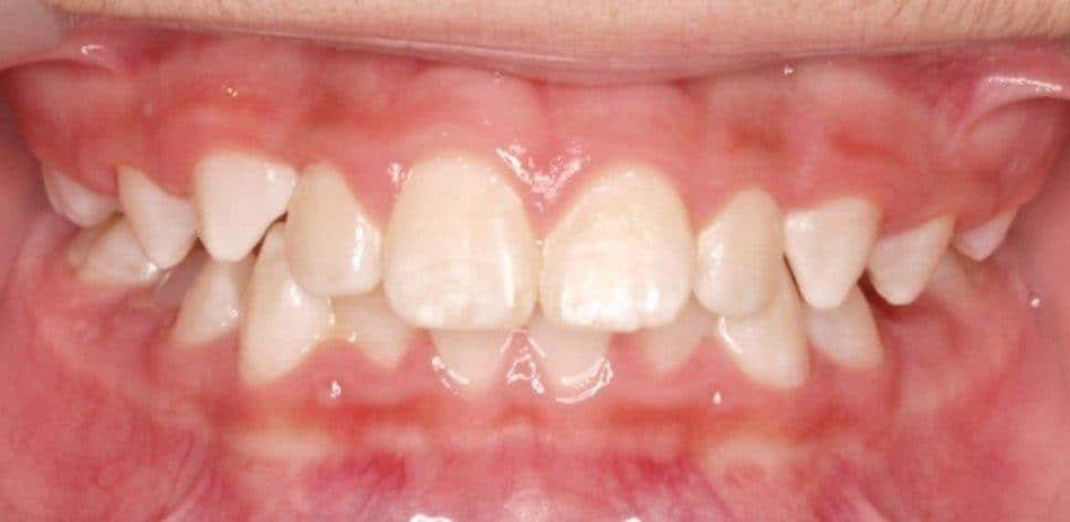 לפני - יישור שיניים לילדים
