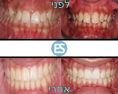 יישור שיניים לפני ואחרי ד''ר עיני