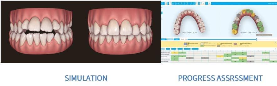 טכנולוגיה מהפכנית ביישור שיניים