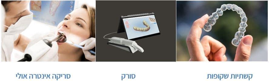 מהפכה טכנולוגית ביישור שיניים
