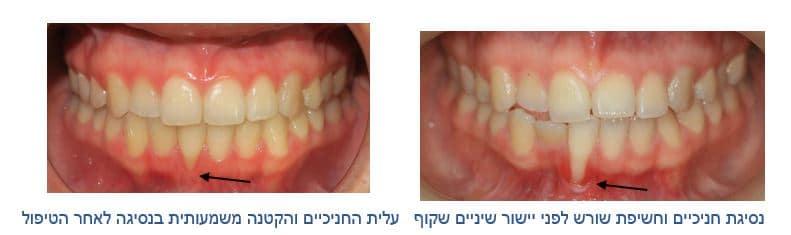 הקשר בין דלקות חניכיים לשינויים מבניים בשיניים ויישור שיניים