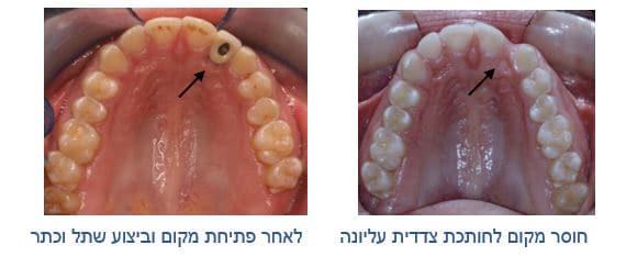 יישור שיניים לאחר דלקת בחניכיים