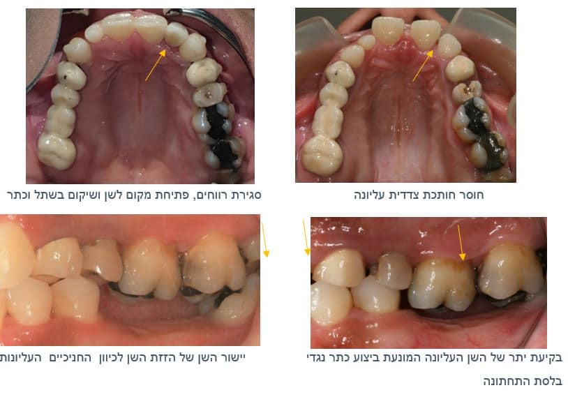 שיקום הפה ויישור השיניים